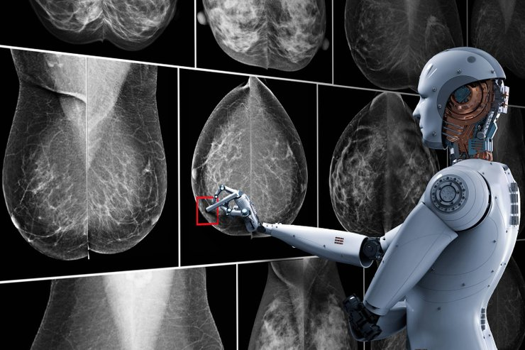 AI-can-be-used-to-pinpoint-cancerous-tissues